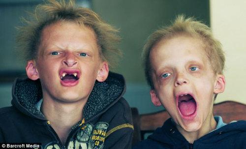 У 13-летнего Саймона и 11-летнего Джорджа Калленов редкая генетическая аномалия