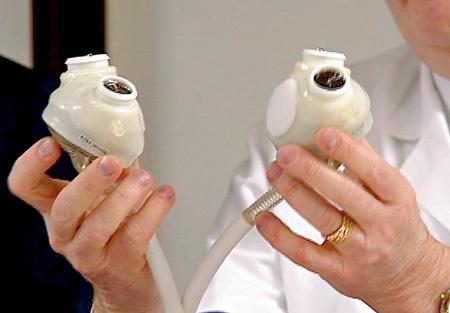 Искусственное сердце - механический прибор, временно берущий на себя функцию кровообращения. Человек может длительное время находиться с таким аппаратом в ожидании трансплантации