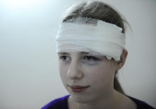 По последним данным, пострадали 1147 человек, в том числе 259 детей (фото РИА Новости)