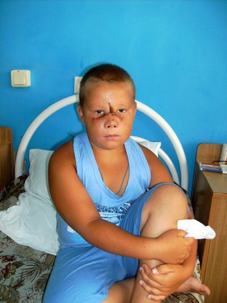 Нос у Кирилла БОЛОТОВА держался на лоскуте кожи