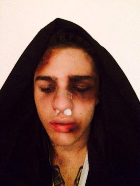 Снимок избитого Жёлудя на своей страничке в соцсети выложила его подруга