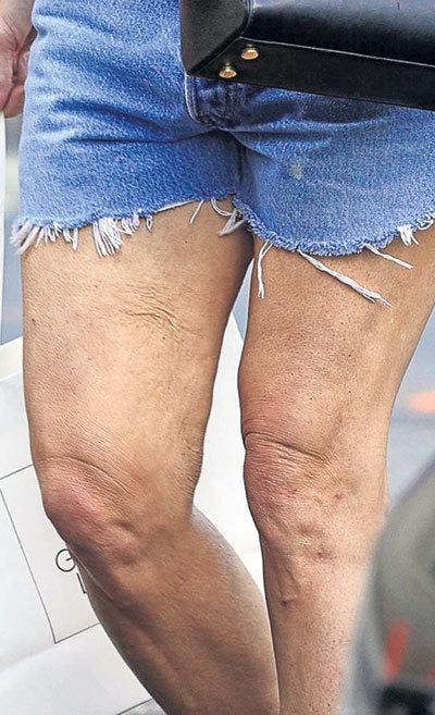 Целлюлит с ног Деми не удалось убрать и за бешеные деньги (Фото: ©Splash)