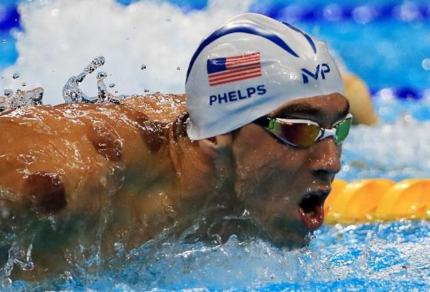 Перед важным стартом Майкл ФЕЛЛПС не скрывает, что использует все средства для достижения результата. Одно из них – физиотерапия, о чём свидетельствуют следы от банок. Фото: © Reuters