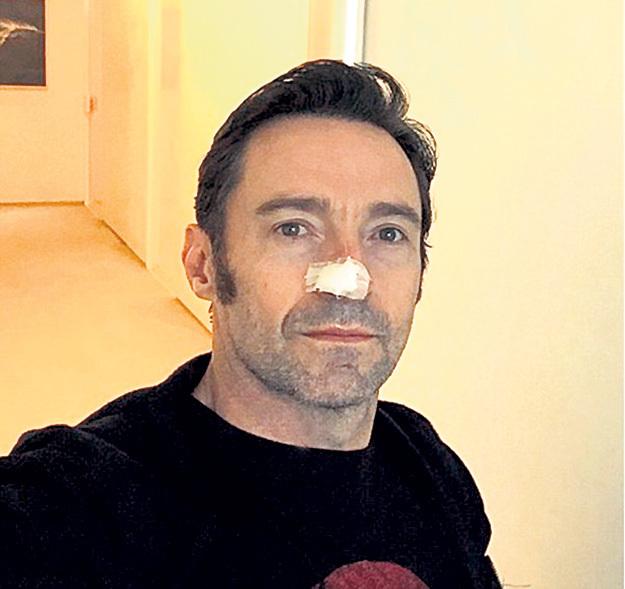 Первую операцию на носу Хью ДЖЕКМАН перенёс в ноябре 2013 года, а сейчас там почти не осталось живого места