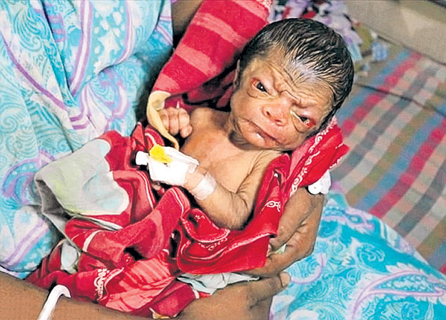 Мальчик из Бангладеш страдает редчайшим генетическим заболеванием, которое влияет на изменение кожи и внутренних органов, из-за чего новорождённый выглядит как 80-летний старик