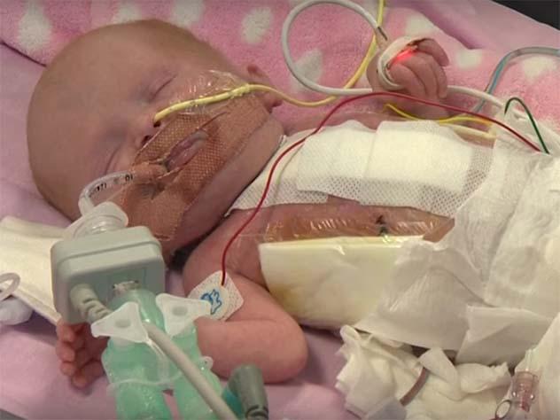 СМИ: британские кардиологи спасли младенца, родившегося с сердцем вне грудины